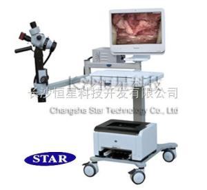 婦科陰道檢查儀,陰道鏡廠家報價,進口光學陰道鏡代理